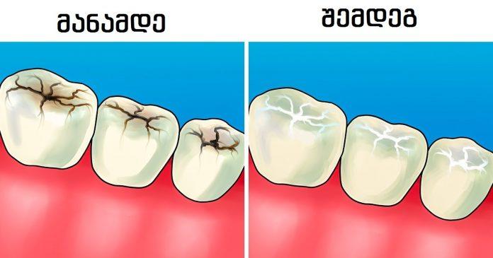 8 პასუხი კბილებთან დაკავშირებულ ყველაზე ხშირად დასმული კითხვებზე - პრაქტიკოსი სტომატოლოგისგან