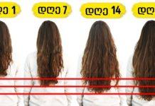 7 პროდუქტი, რომლებიც თმის ზრდის პროცესის დასაჩქარებლად უნდა მიირთვათ