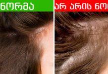 რას ამბობს თმის მდგომარეობა თქვენს ჯანმრთელობაზე