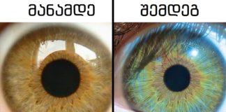 7 რამ, რასაც თქვენი თვალების ფერის შეცვლა შეუძლია