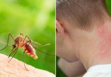 თუ კოღოს ნაკბენის შემდეგ კანი გისივდებათ, თქვენ შეიძლება სკიტერის სინდრომი გქონდეთ