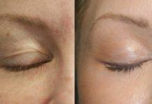 თვალის ირგვლივ სითხის დაგროვება შეწყდება, თუ სუფთა მშრალ კანზე დაიწვეთებთ