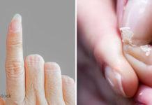 6 ვიტამინი და მიკროელემენტი, რომლებიც ფრჩხილის პრობლემებს მოგიგვარებთ