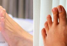5 მიზეზი, რომლებიც ფეხების ხშირ კრუნჩხვებს იწვევს